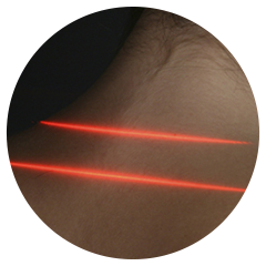Chiropractic Green Bay WI Laser Therapy